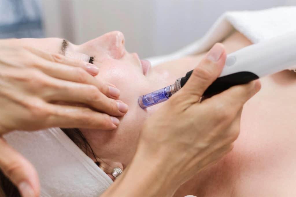 Hautnah Behandlung: Microneedling